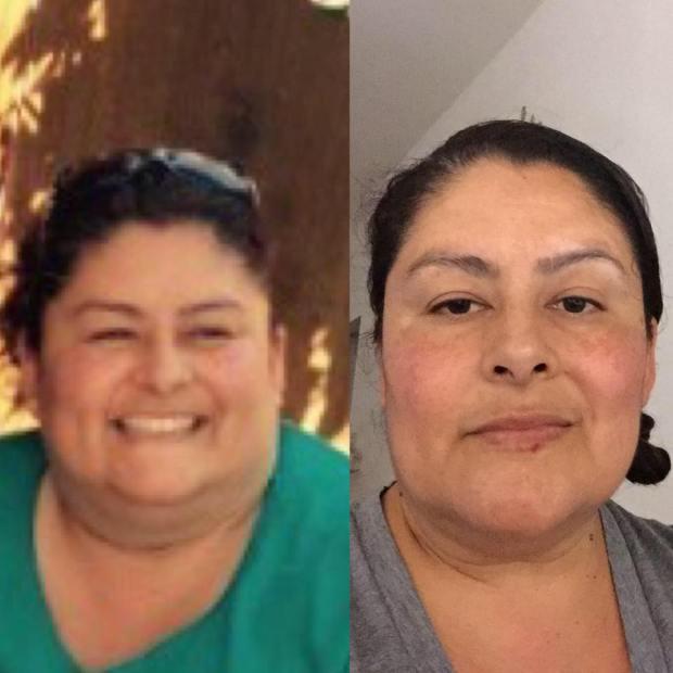 Keto transformation picture